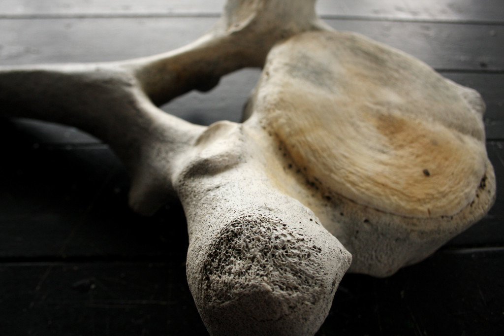 4 vertebra
